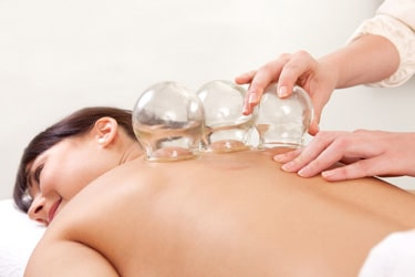 Cupping Therapy Canby OR Vissers Chiropractic